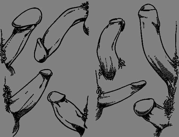 форма члена фото