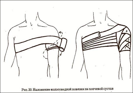 Наложить колосовидную повязку на плечевой сустав показания оснащение желатин как лекарство для суставов