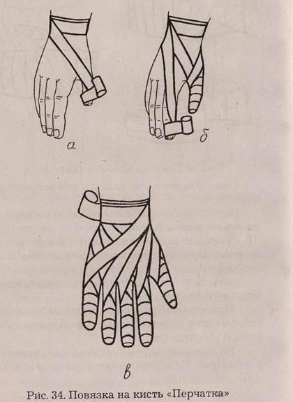Правила наложения тугой повязки при растяжении 68