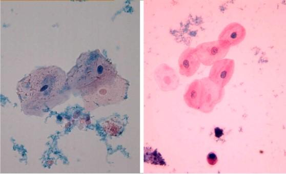 Клетки переходного эпителия в моче у беременных