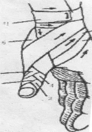 Колосовидная повязка на 1 палец кисти
