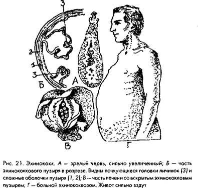 эхинококк фото у человека