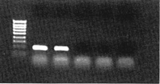 Реакция пцр микробиология 15