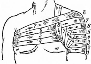 Наложение повязок на плечевой сустав оечение артропатия коленного сустава бурсит