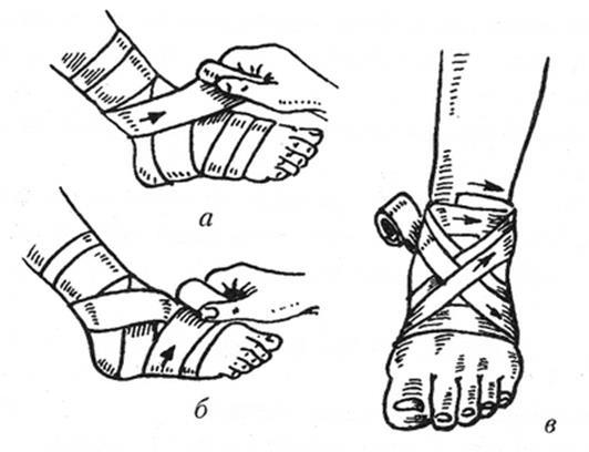 Повязка наголеностопный суставв выпуклость на кистевом суставе