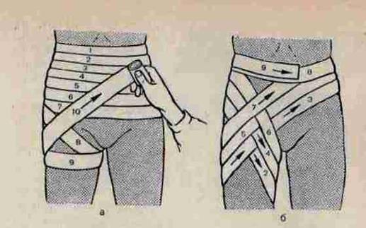 Повязки на тазобедренный сустав сближены скакательные суставы как исправить